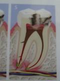 Wurzelbehandlung, Zahn mit Loch
