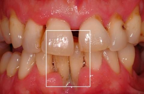Weiße Stellen Zahnfleisch