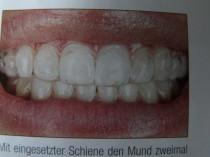 Zahnarztpraxis Dr. Dr.Rudolf Maier, Regensburg, Bleaching