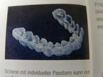 Bleichen der Zähne Extern mit Schiene