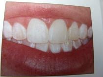 Zähne nach der Behandlung Mikroabrasion